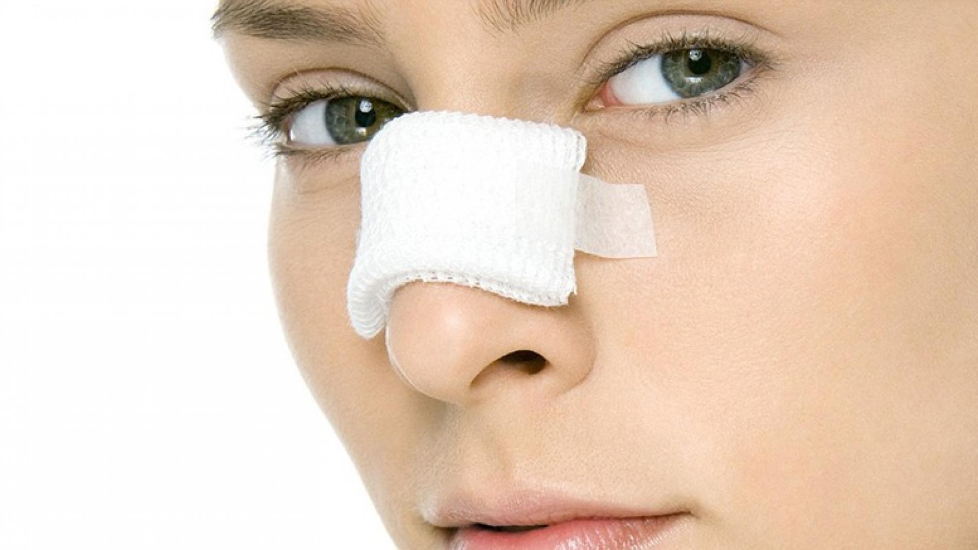 clinica de cirurgia plastica em santos dra. ana lucia rinoplastia