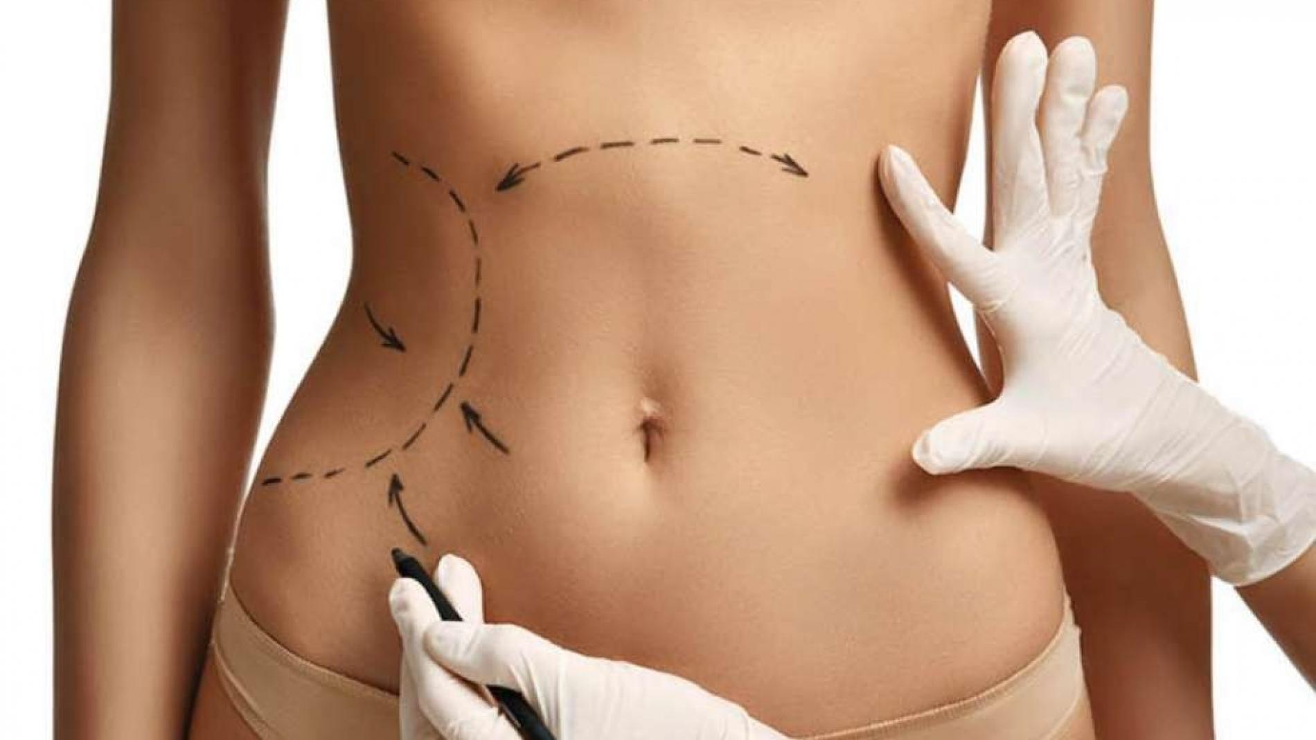 clinica de cirurgia plastica em santos dra ana lucia lemos pre operatorio