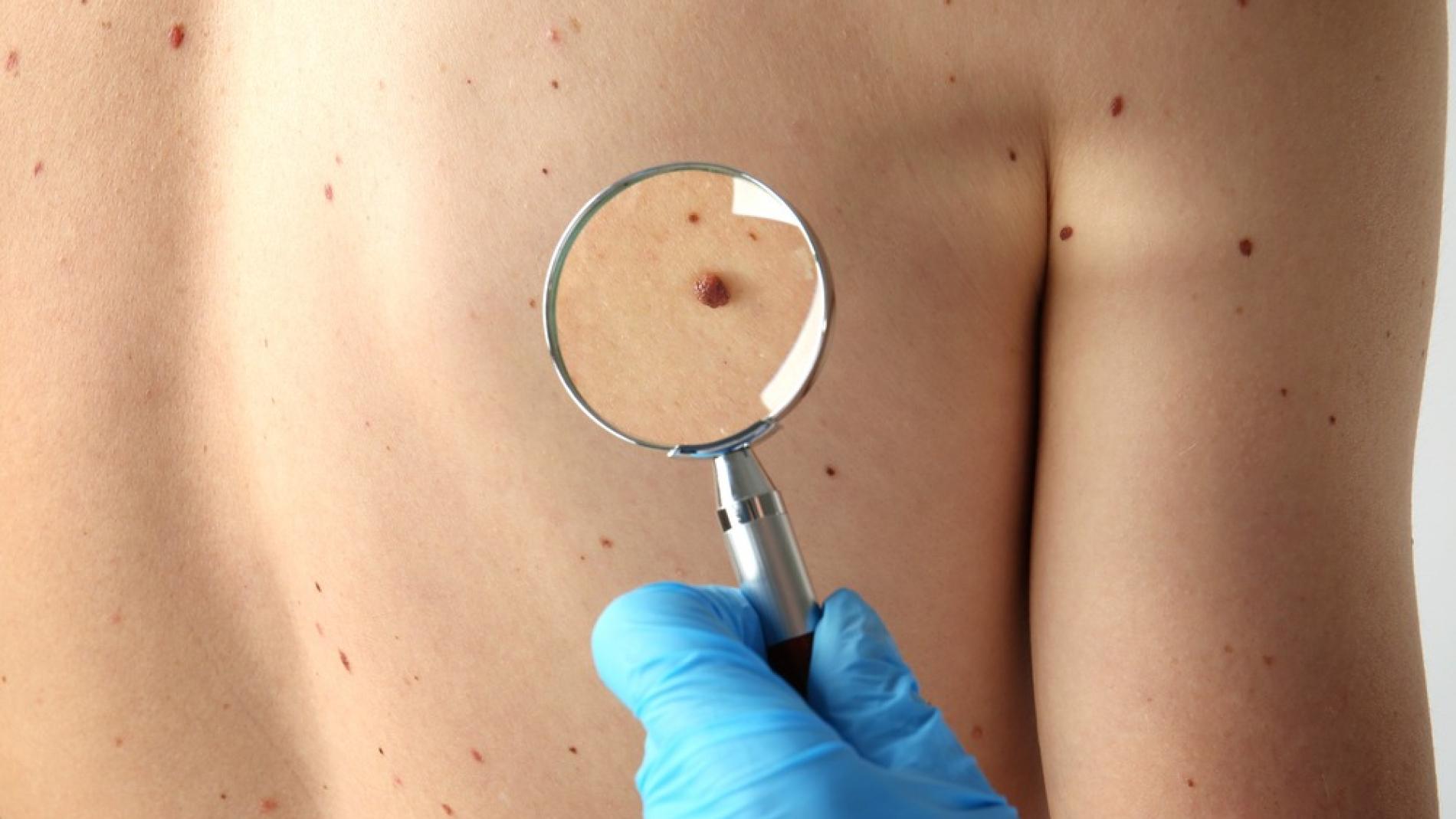 clinica de cirurgia plastica em santos dra ana lucia lemos manchas ou pinta na pele
