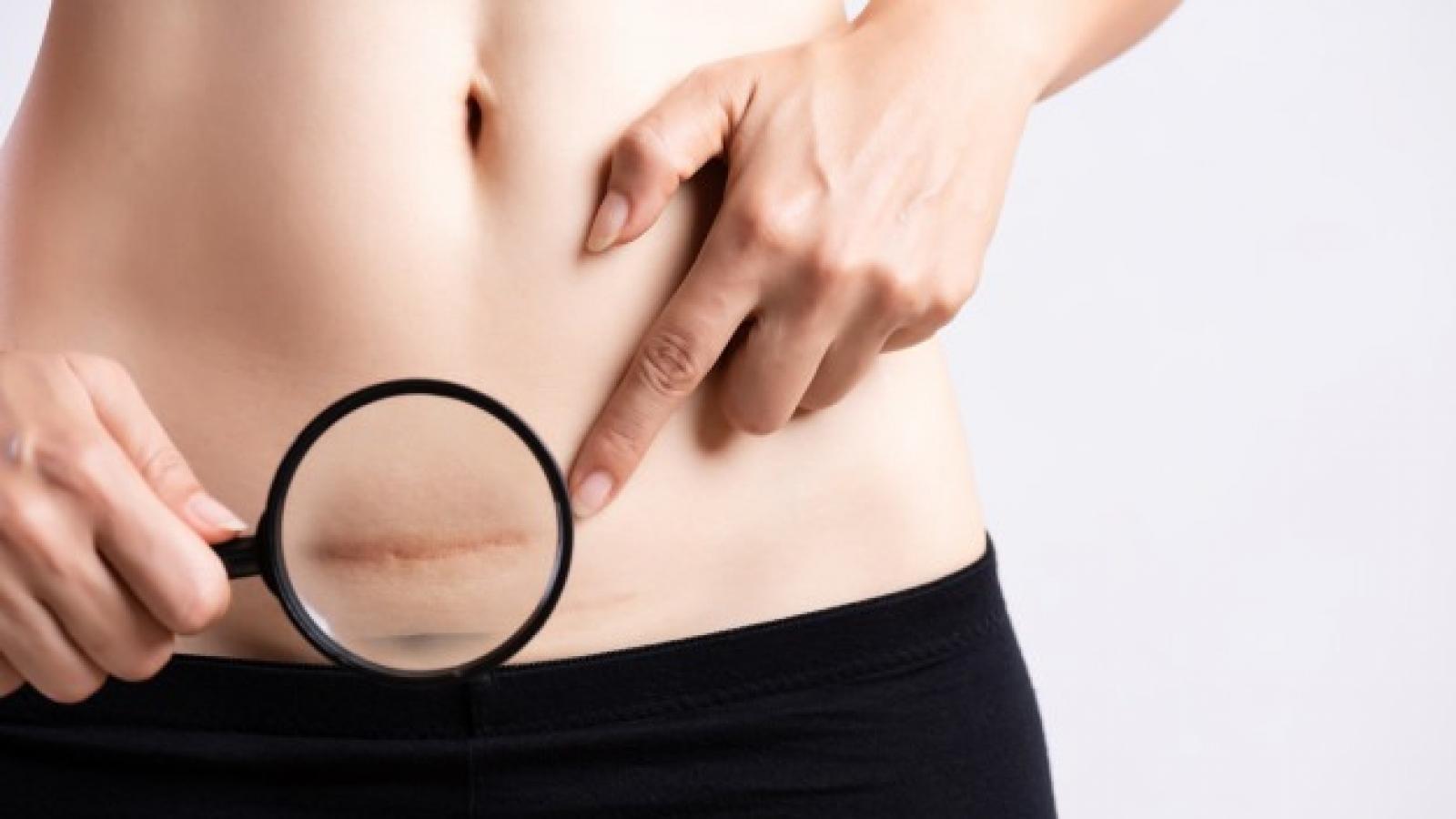 CLINICA DE CIRURGIA PLASTICA EM SANTOS Cirurgia plástica de correção de cicatriz melhora a aparência destas marcas.