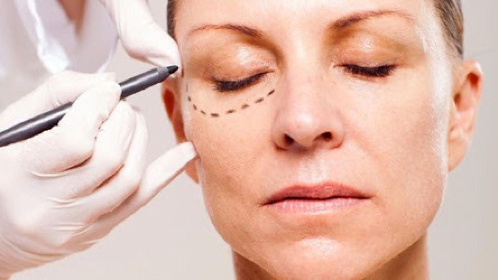 Clinica de cirurgia plastica em santos dra ana lucia lemos Quais são os resultados da cirurgia plástica de pálpebras