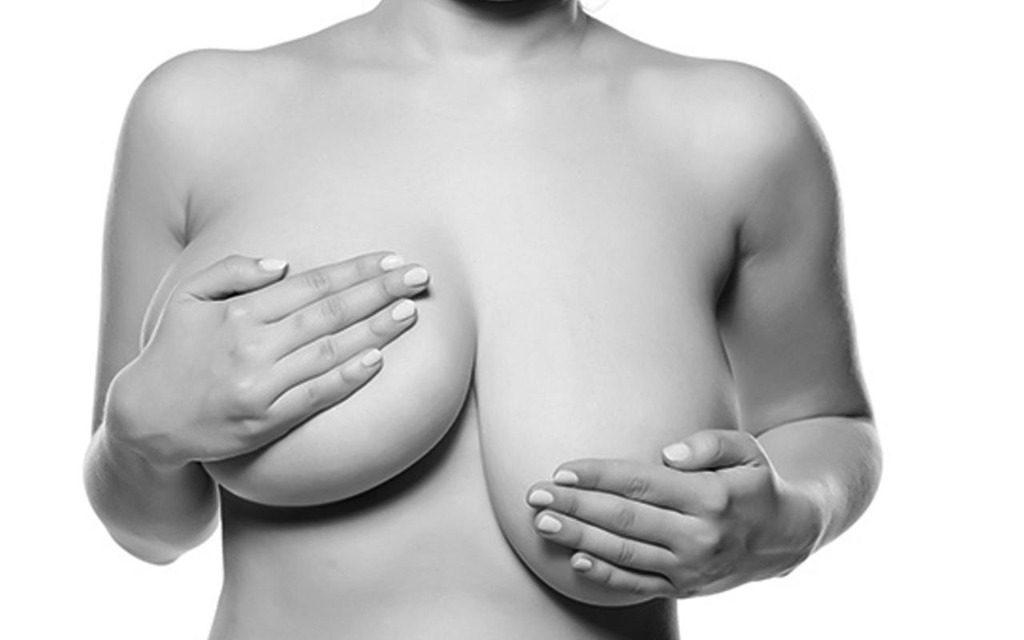 A assimetria mamária pode ser corrigida, melhorando assim a autoestima da mulher.