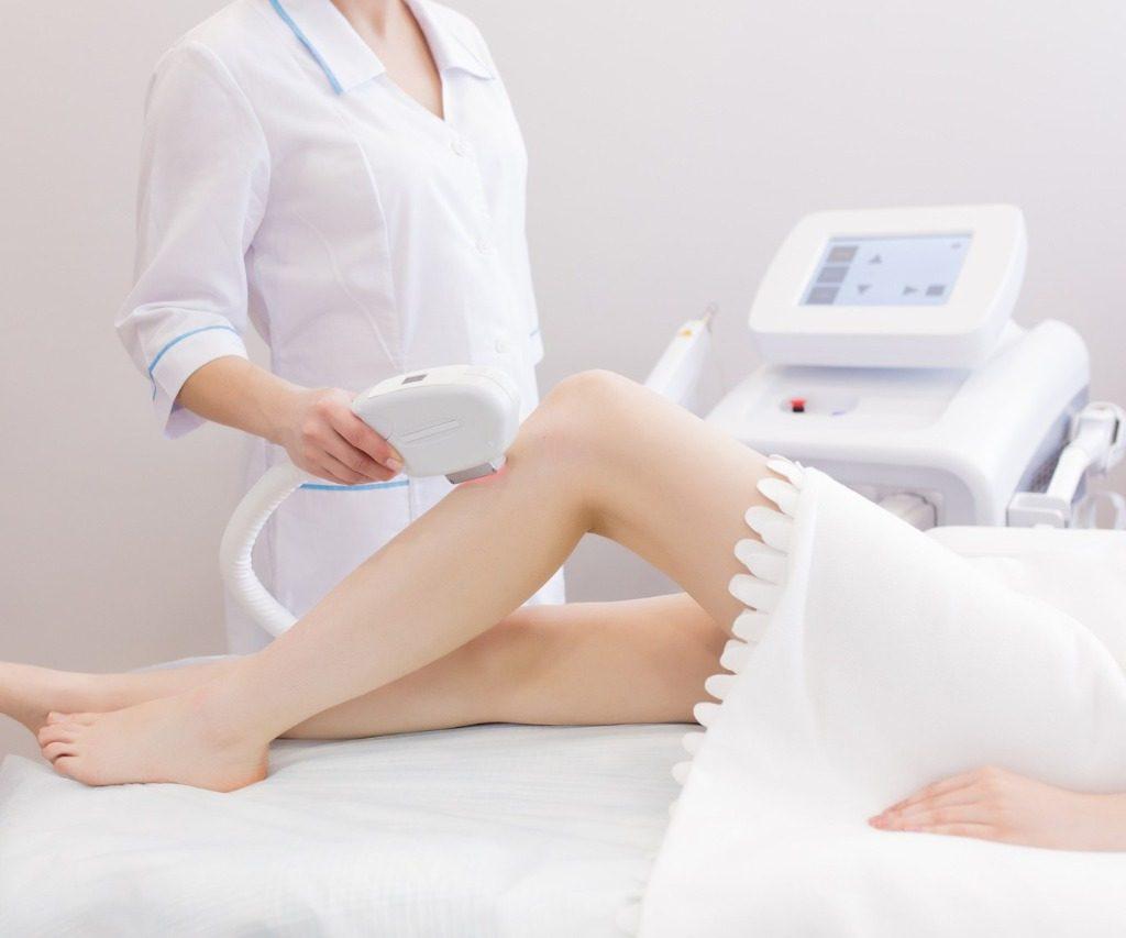 A fotodepilação é um tratamento dolorido?