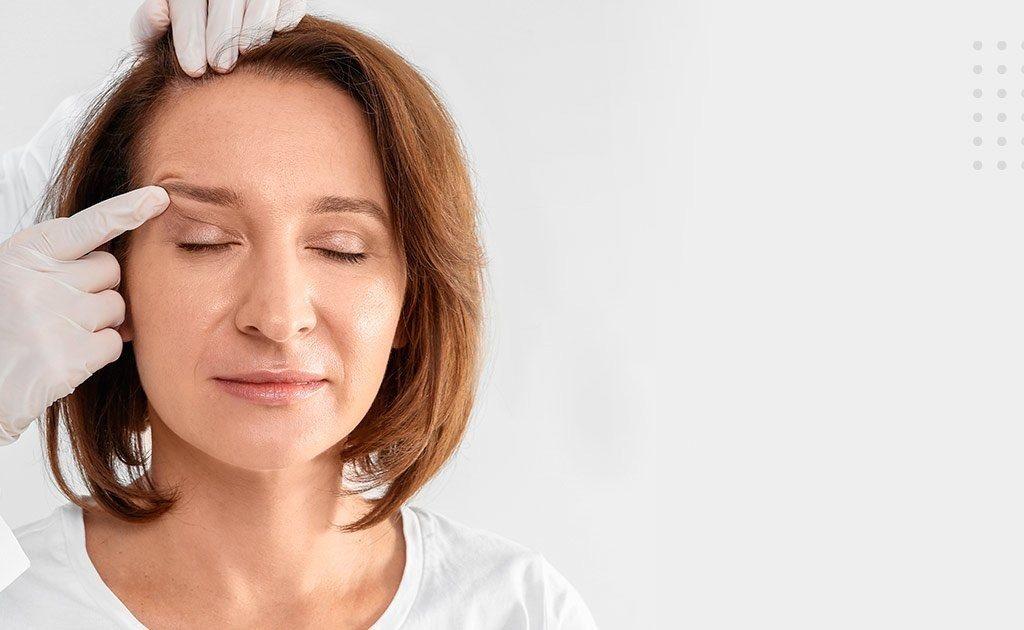 A blefaroplastia pode mudar a sua fisionomia?